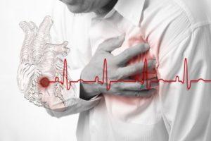 Средства для потенции после инфаркта без побочных эффектов