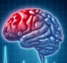 Что нужно знать о восстановлении потенции после инсульта?