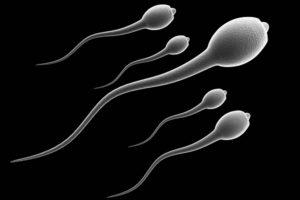 Криптозооспермия – что это такое и как лечить болезнь мужчине?