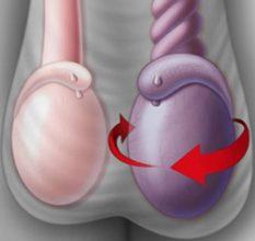 Влияние варикоцеле на потенцию — что нужно знать мужчине?