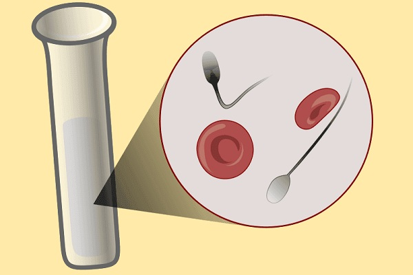 Почему сперма с кровью 14