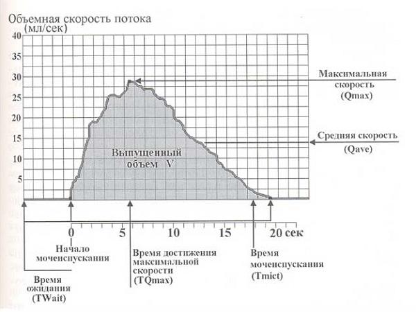 График данных урофлоуметрии