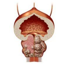 Аденома простаты — причины и симптомы, лечение и прогноз для мужчин