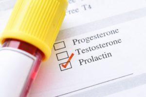 За что отвечает пролактин у мужчин, что значит, способы корректировки
