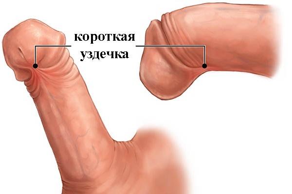 Короткая уздечка головки на фото
