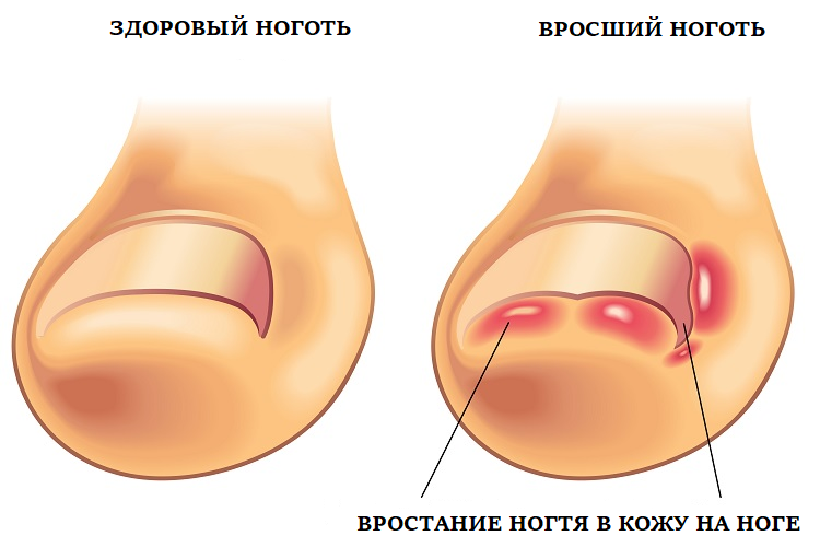 Как выглядит вросший ноготь