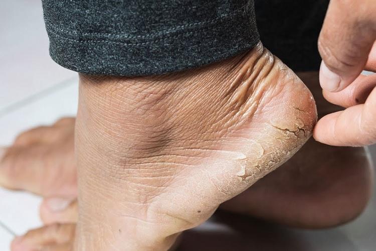 Трещины на мужской пятке